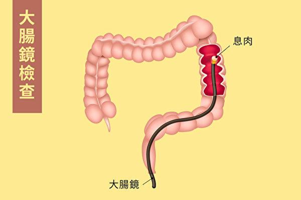 大腸鏡檢查是通過一條細小柔軟的管子伸入直腸裡,在管子的頭部有微型攝像頭,拍攝腸道內的圖像,然後顯示在屏幕上。(Shutterstock/大紀元製圖)