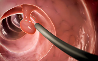 什么是大肠镜检查?做大肠镜能预防大肠癌吗? (Shutterstock)