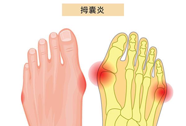 拇囊炎(Bunions)的症狀是在大腳趾關節發生隆起,並導致腫脹。(Shutterstock/大紀元製圖)