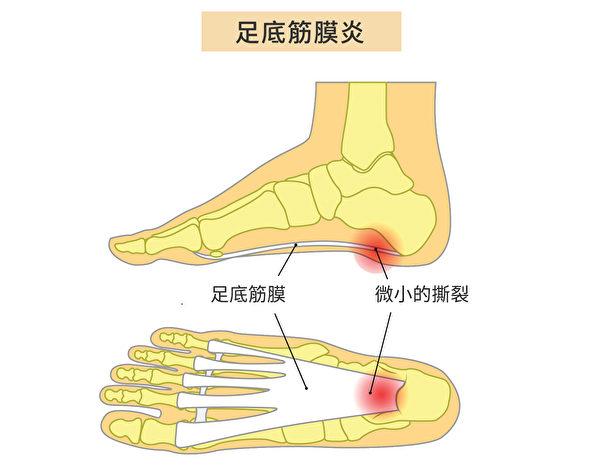 足底筋膜炎(Plantar Fasciitis)是足底筋膜發生炎症,症狀是腳後跟疼痛。(Shutterstock/大紀元製圖)