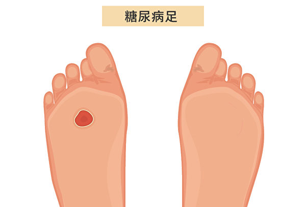 糖尿病足(Diabetic Foot)導致足部受損病症:足部感染、潰瘍和深層組織破壞。(Shutterstock/大紀元製圖)