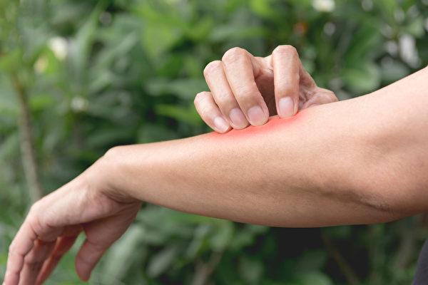 由蚊子传播的屈公病具体会引起哪些症状、如何预防?(Shutterstock)