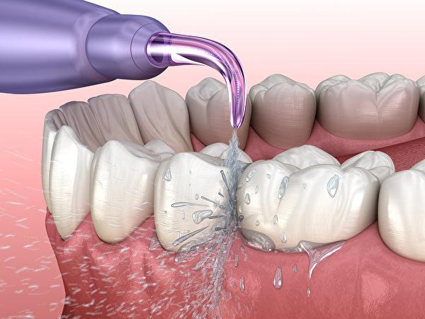 沖牙機不僅可去除牙縫間的殘渣與牙菌斑,還可按摩牙齦。(Shutterstock)