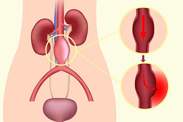 动脉瘤(aneurysm)通常是血管壁异常变薄或变弱所致。(Shutterstock/大纪元制图)