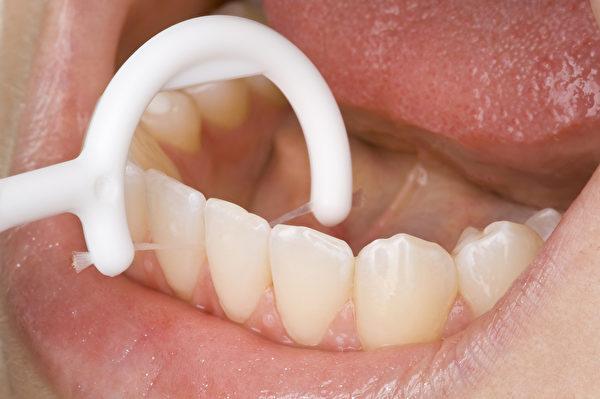 刷牙往往只能清洁到牙齿表面,牙齿之间的接面与缝隙初步要靠牙线来处理。(Shutterstock)
