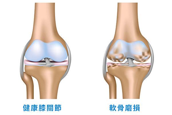 健康膝關節和軟骨磨損的膝關節。(采實文化提供/大紀元譯製)