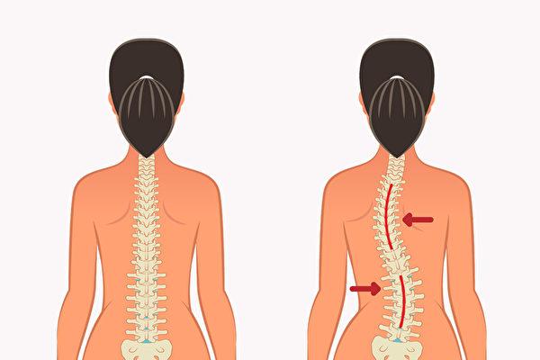 姿勢不正確容易造成脊椎側彎,如何調整?(Shutterstock)