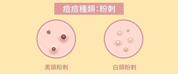 粉刺是没发炎的青春痘,可分为白头粉刺与黑头粉刺。(Shutterstock/大纪元制图)