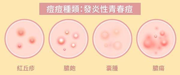 发炎性青春痘与细菌有关,包括红丘疹、脓疱、囊肿和脓疡。(Shutterstock/大纪元制图)