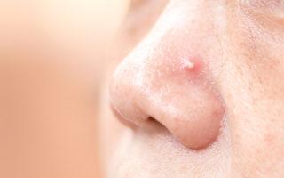 痤疮是慢性皮肤病 中西医分别如何治疗