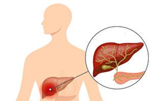 胆管癌是少见的癌症,早期症状不典型,多在晚期才诊断。(Shutterstock/大纪元制图)