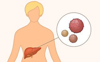 肝炎有ABCDE五种,哪些肝炎可能发展成肝癌?(Shutterstock/大纪元制图)