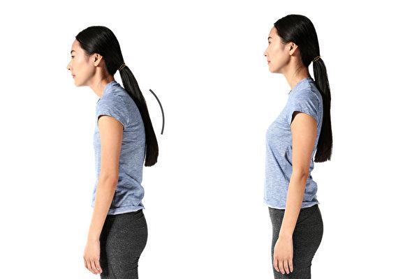 駝背久了會引起肩頸痠痛、腰痛,簡單動作可以矯正駝背。(Shutterstock)