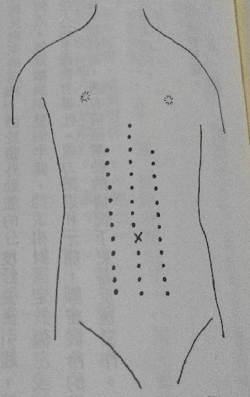 指壓腹部穴道(參照圖身體軀幹部虛線)。