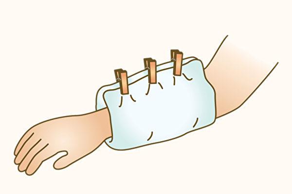 烫伤送医前,应使用干净的纱布覆盖患部,以免伤口在运送过程中感染。(Shutterstock)
