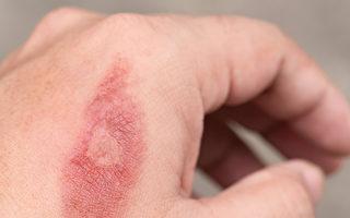 烫伤之后如何正确处理?可以用冰块敷吗?(Shutterstock)