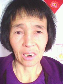 盧富蓮牙齒被撬掉。(明慧網)