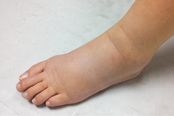生理性水肿多半只是双脚对称性水肿,且恢复得很快。病理性水肿可能是单脚水肿,或双脚水肿伴随其它部位水肿。(Shutterstock)