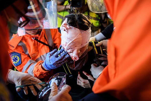 2019年8月11日反送中尖沙咀現場,一名女子遭警方布袋彈射穿眼罩、擊中右眼球及鼻樑骨,當場血流如注。報道指她現時傷勢嚴重,右眼球爆裂,視力或永久受損。(ANTHONY WALLACE/AFP/Getty Images)
