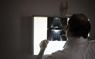 X射线机辐射超标 重庆一医院十多名职工患癌