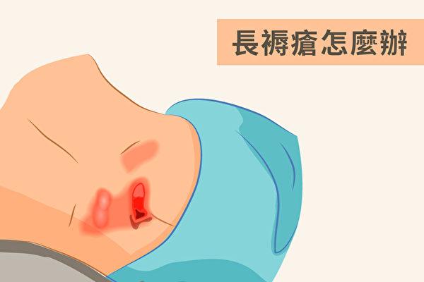 褥疮往往是年长者或病人长期卧床、坐轮椅而产生的皮肤病变。(Shutterstock/大纪元制图)
