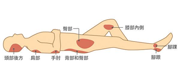 最常长褥疮的身体部位包括臀部、肩部、背部、脑部后方等。(Shutterstock/大纪元制图)