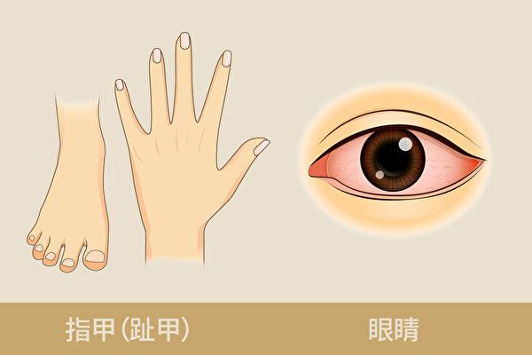 中醫從指甲和眼睛的表象,可以判斷肝功能好壞。(Shutterstock/大紀元製圖)