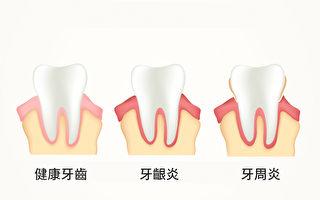 牙周病是身體慢性發炎?為體內滅火可防多種疾病