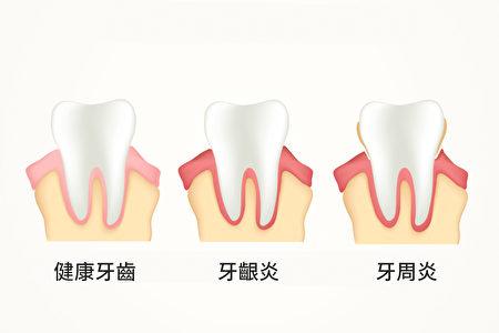 牙周病不仅是口腔疾病,也可能意味着身体已经慢性发炎。(Shutterstock)