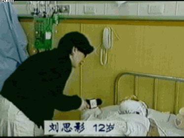 記者無任何防護,採訪重度燒傷的劉思影(大紀元)