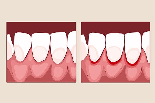 牙齦發炎不只引起出血,日後還可能帶來牙齒鬆動、脫落等問題。(Shutterstock)