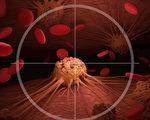 """新型""""瞬间放射疗法""""技术,在小鼠实验中成功使癌细胞凋亡,而健康细胞却不受损。(Shutterstock)"""