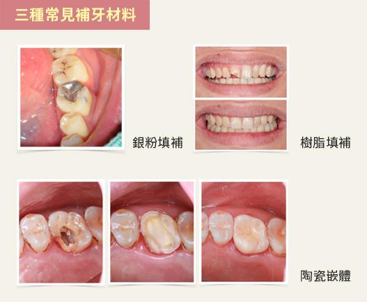 三種補牙材料填補牙齒後的外觀(蔡忠廷醫師提供/大紀元製圖)