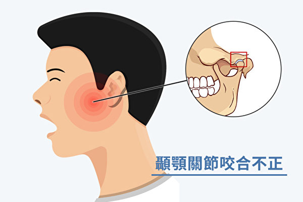 顳顎關節是臉部唯一的關節,顳顎關節咬合不正怎麼辦?(Shutterstock/大紀元製圖)