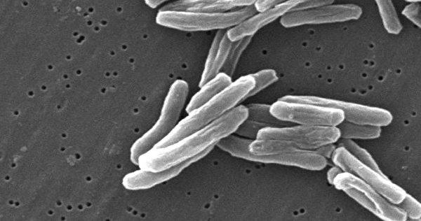 被稱為「白色瘟疫」的肺結核。(Wikimedia Commons)