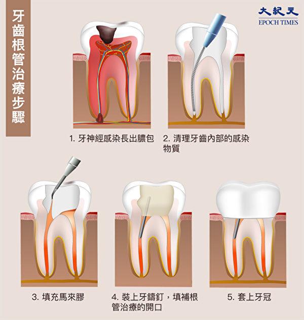 蛀牙根管治療(抽神經)的步驟。(Shutterstock/大紀元製圖)