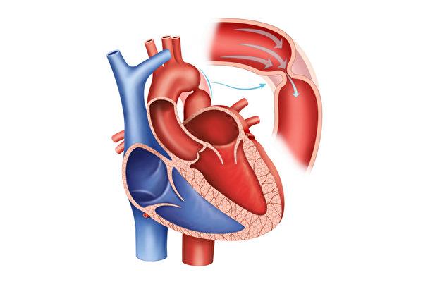 心血管狹窄可說是無聲的殺手,可能引起心臟缺氧,甚至在睡眠中引發危險。(Shutterstock)
