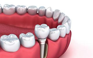 TCI舒眠麻醉治疗方法的出现,减轻了植牙和看牙医的痛苦。(Shutterstock)