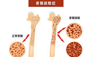 40歲後 你有骨鬆危機嗎?1圖測出骨骼健康度