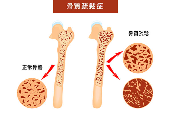 FOSTA指標不需要測量骨質密度,就可以輕鬆預知罹患骨質疏鬆症的風險。(Shutterstock/大紀元製圖)