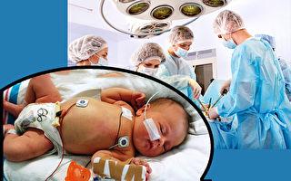 6個月大寶寶開二次心臓手術 第一次展開燦爛微笑