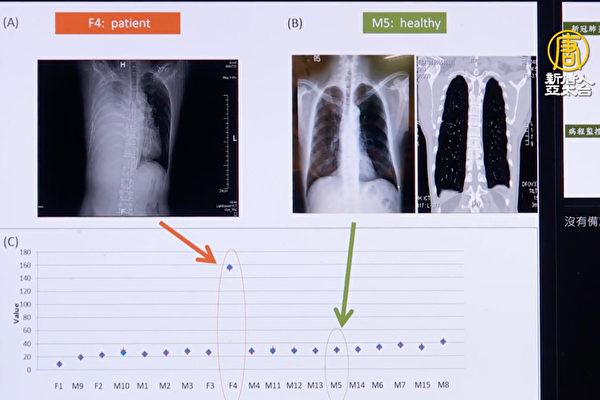 肺炎行动筛检仪则能查看肺部有无浸润与积液情况。(新唐人电视台提供)