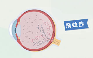 【胡乃文開講】頭部1個動作 改善飛蚊症 中醫分享護眼妙招