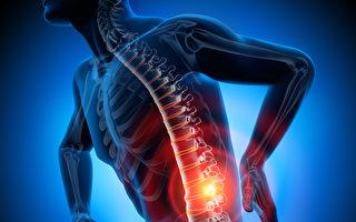 腰痛解剖示意圖。