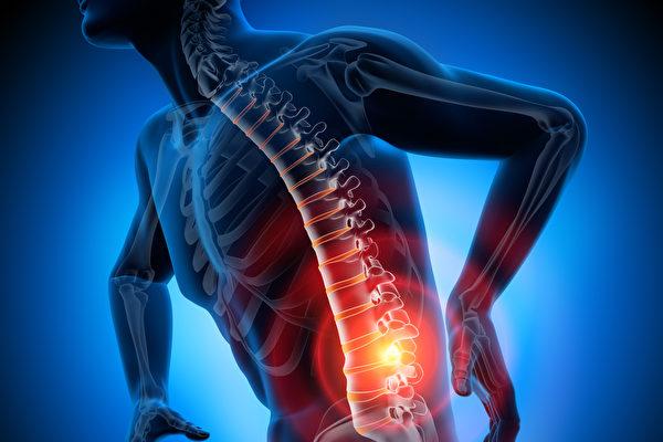腰痛解剖示意图。