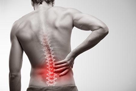 腰痛,针灸是很好的治疗方法