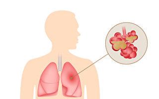 不只是咳嗽和发烧 肺炎的突出症状有哪些?
