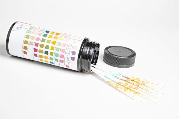 小便红色不一定是血尿,可以使用尿液试纸来检查看看有没有潜血反应。(Shutterstock)