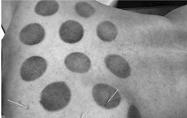 拔罐的效果可以讓組織從皮膚呈粉色的微量出血到明顯瘀血。(臉譜出版提供)