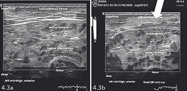 同示在拔罐治療前後組織彈性的差異。第二張照片可以看見,皮下區域有比較多暗色區塊,表示組織僵硬程度下降。(臉譜出版提供)